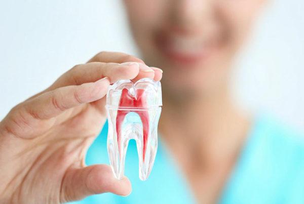endodoncia - clínica dental Mar Tarazona