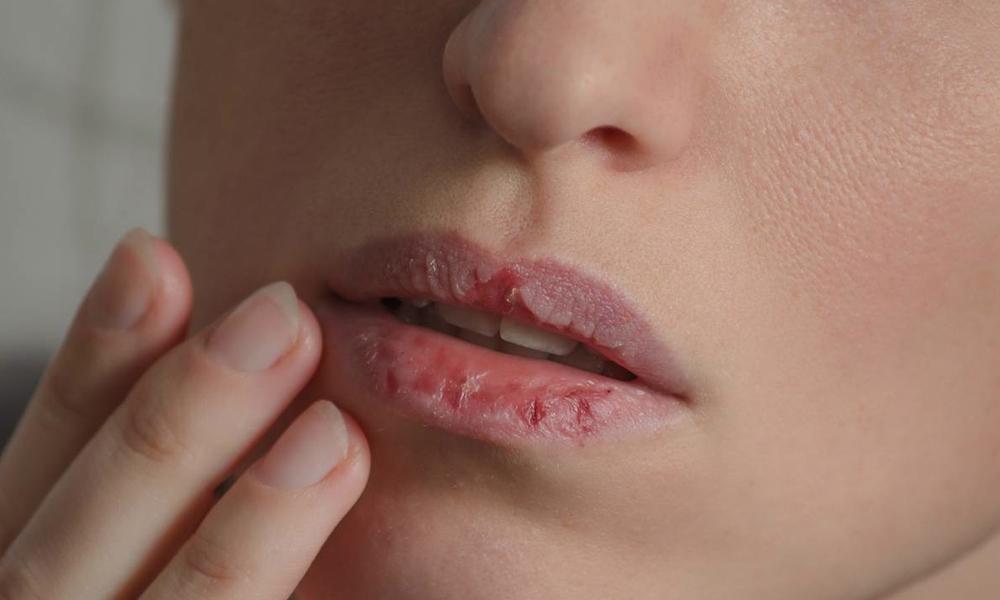 estrés y problemas bucodentales - clínica dental Valencia